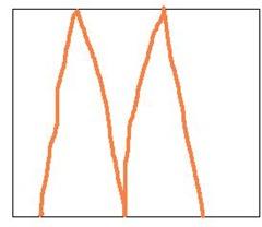 Mに直線2本で三角形10個